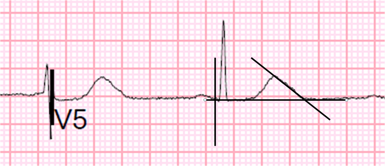 Drawing Lines In Qt : Dr smith s ecg july