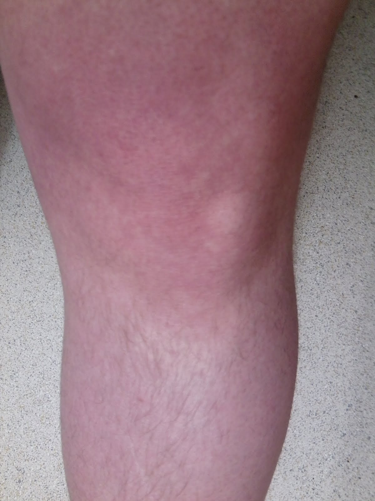 how to get swelling off your knee