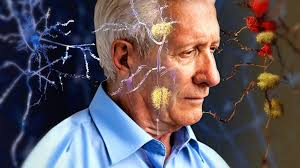 Bactérias da gengiva estão relacionadas à evolução do Alzheimer