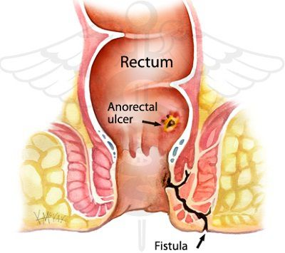 Complications of anal fistula