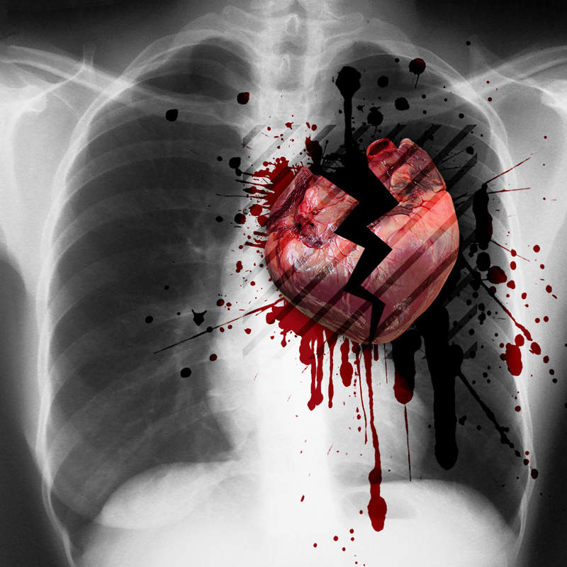 Ces coeurs brisés // Those broken hearts