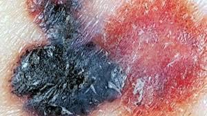 Breash Melanoma