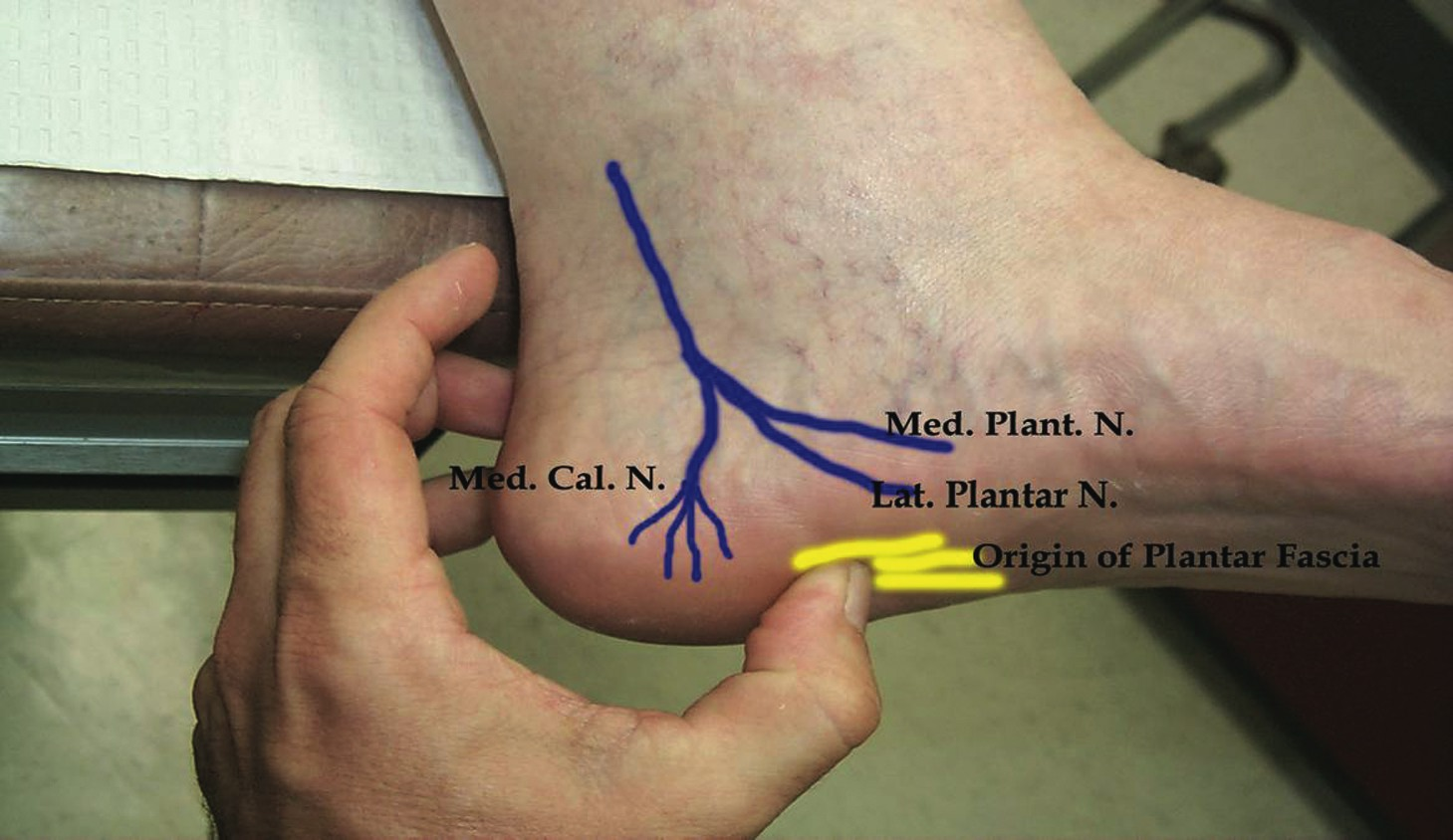 A Runners Progress Tibial Nerve As A Source Of Plantar Heel Pain