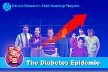 Epidemic of diabetes