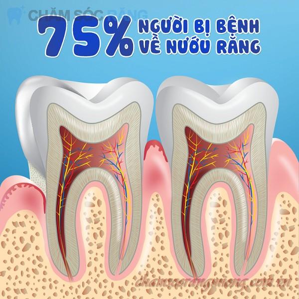 Tụt nướu chân răng và cách chữa trị