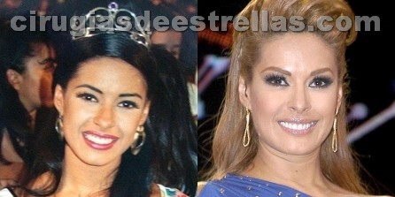 galilea montijo antes y despues