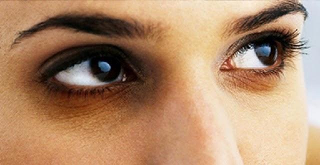 علاج سواد تحت العينين أو الهالات السوداء