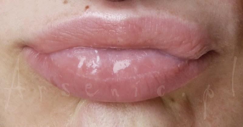 DIY: hialuronowy wypełniacz ust z cynamonem + efekt kuracji po miesiącu