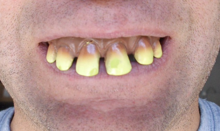 for cost removing wisdom average teeth