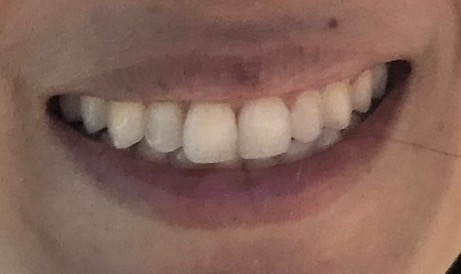 9 years of retainer wear later my teeth look like this - 2020