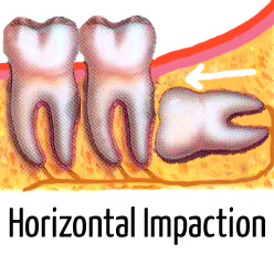 infected wisdom tooth pictures (horizontal tooth impaction)