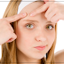 Remove Pimples Scars - The Cheapest Ways To Eliminate Acne Scars