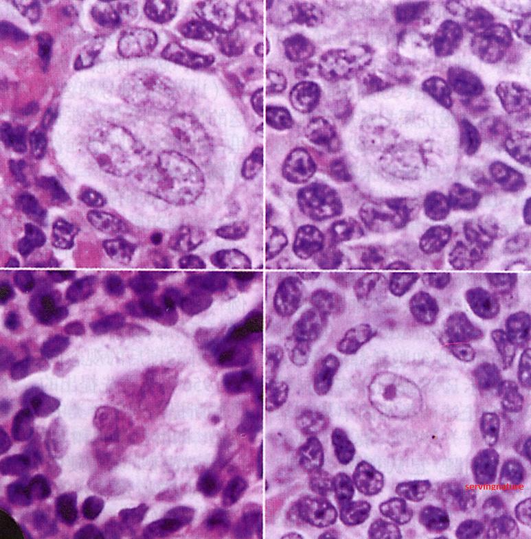 Follicular lymphoma in adults