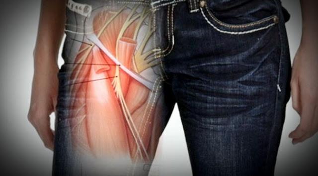 10 Bahaya Medis Memakai Pakaian Ketat