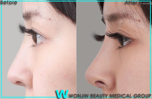 the_best_korean_rhinoplasty_wonjin_cosmetic_surgery