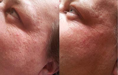 Skin Peel Results
