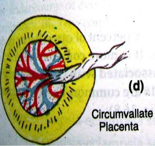 Circumvallate