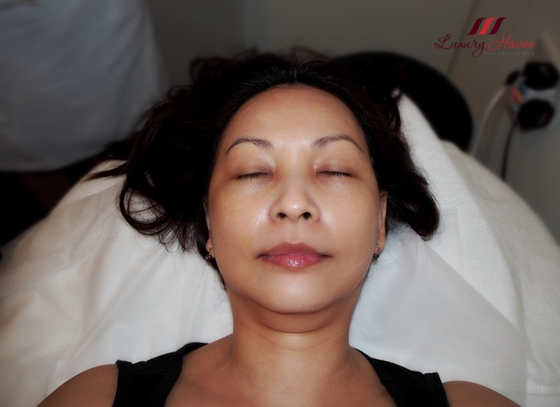 singapore aesthetics eha clinic restylane skinboosters blogger review