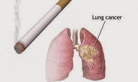 Penyebab Kanker Paru Paru