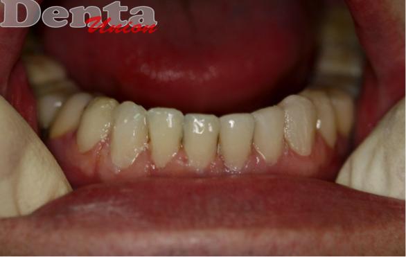 Реставрация зуба с