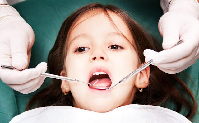 Cara Mencabut Gigi Sulung Pada Anak
