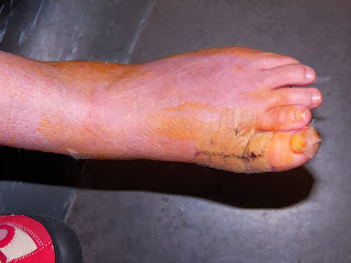 big toe fusion, incision, steri strips, post-op scar