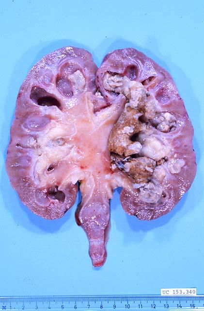 medicamentos para combatir el acido urico acido urico alto motivos dieta por acido urico alto