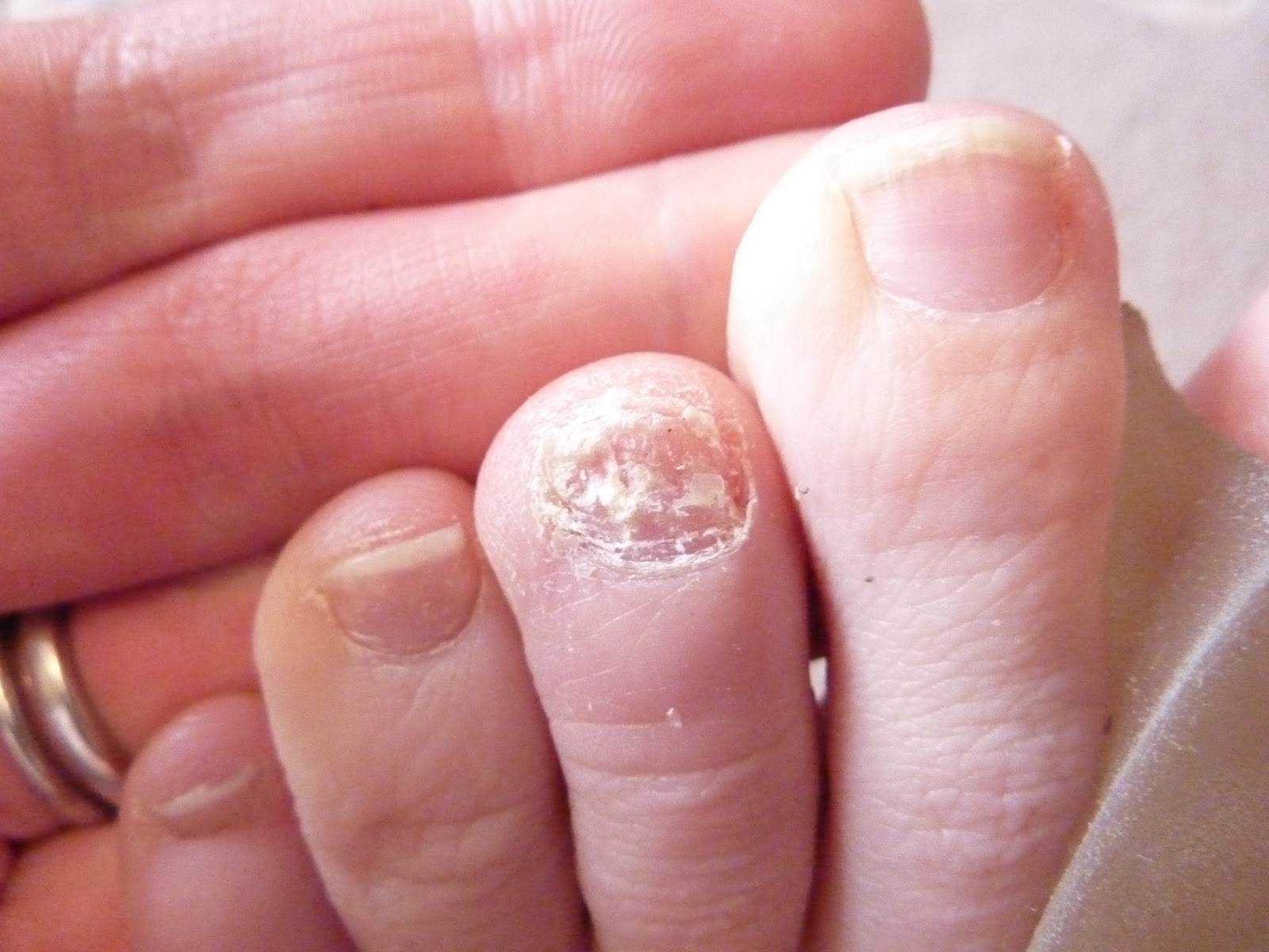 From bunions to beautiful feet may 2013 from bunions to beautiful feet sciox Gallery