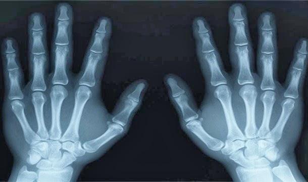 descubrimiento accidental los rayos x
