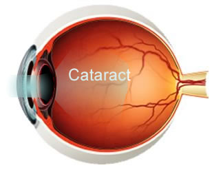 Why Sunglasses are Important After Cataract Surgery