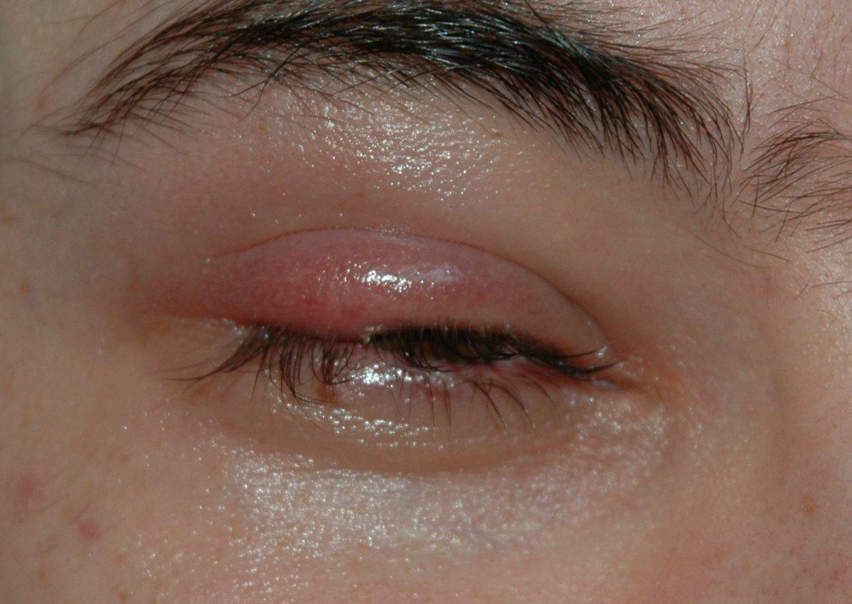 Medicine for eye cancer uk