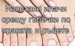 Изпитани илачи срещу гъбички по краката и ръцете