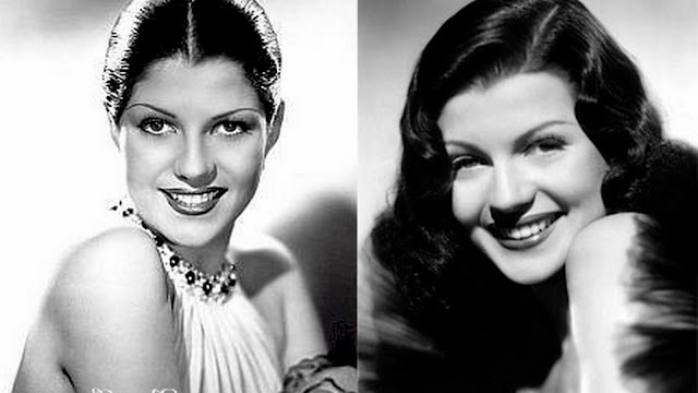 Rita Hayworth Hairline Before After Margarita and rita