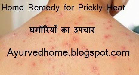 Prickly Heat Home Remedies,  घमौरियाँ का उपचार,  Ghamoriya Ka UpchaarPrickly Heat Home Remedies,  घमौरियाँ का उपचार,  Ghamoriya Ka Upchaar
