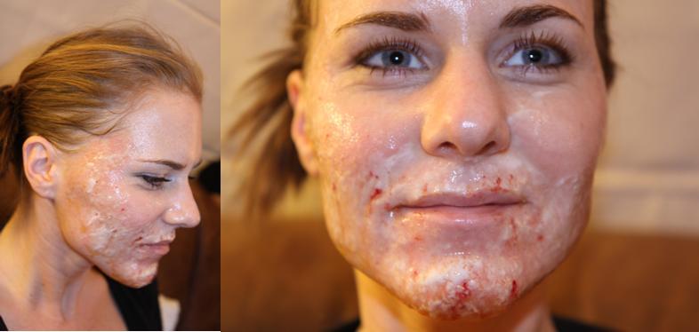 co2 laserbehandeling gezicht