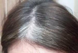 Cara Menghilangkan Uban, tips Menghitamkan Rambut, tips Mengatasi Ketombe, Secara Alami