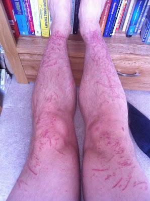 Tim Lovett bramble wounds