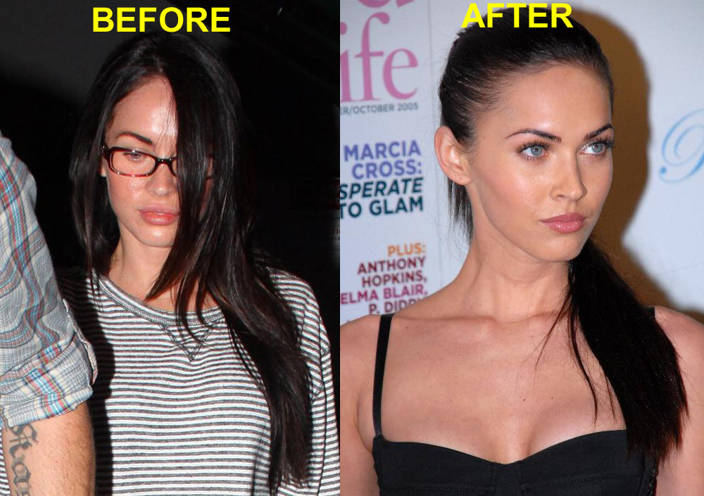 Megan Fox Before & After Without Makeup & Plastic Surgery 17
