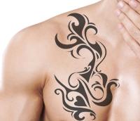 gambar Cara menghilangkan tato