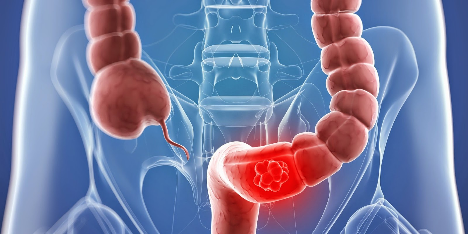 Testosterone May Contribute To Colon Cancer Tumor Growth
