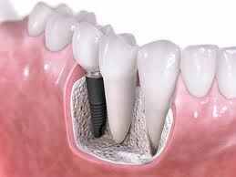 Implant dentistry Arlington