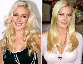 heidi montag before after