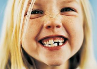 salida o erupcion dientes definitivos o permanentes