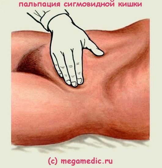 Пальпация сигмовидной кишки
