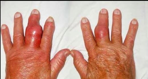 dietas para pacientes con acido urico el vinagre produce acido urico sintomas de alto acido urico