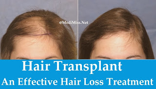 Hair Transplant: An Effective Hair Loss Treatment
