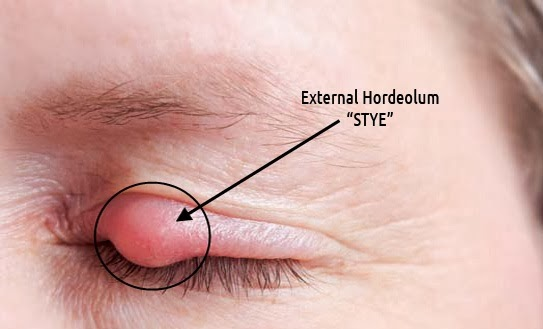 how to get rid of stye inside lower eyelid