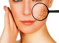 4 Tips Mengatasi Kulit Wajah yang Kering