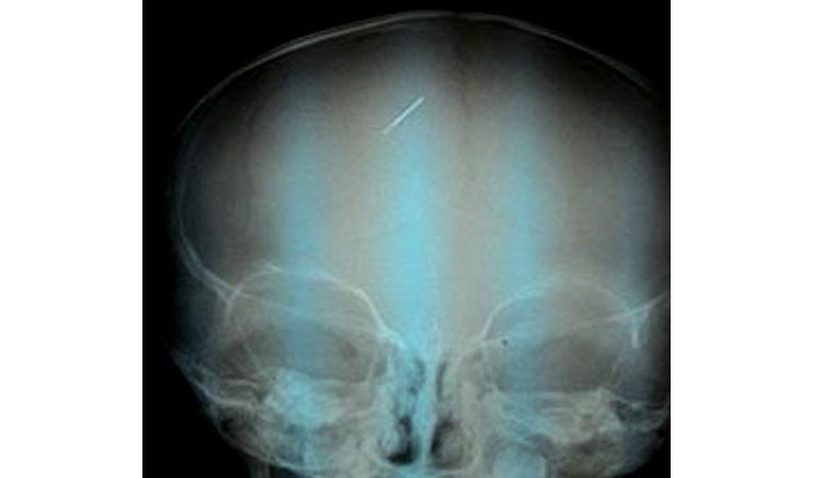 Bé trai ở Gia Lai bị kim khâu đâm vào đầu