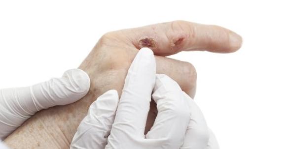 4 Tips Menghilangkan Rasa Gatal Pada Bekas Luka